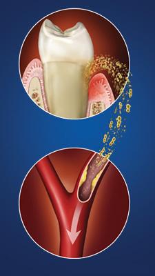 Gum-Disease-Linked-to-Heart-Disease-and-Stroke